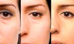 Las bolsas en los ojos son la inflamación de la parte inferior del párpado, como resultado de la acumulación de líquidos y toxinas en esta zona. Este proceso se produce cuando tenemos un exceso de estrés o de cansancio o algún desajuste del organismo. ¿Por qué librarte de las bolsas en los ojos? Al producirse …