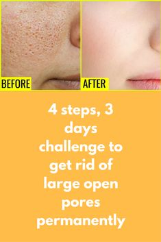 Skin Care Remedies 4 steps, 3 days challenge to get rid of large open pores permanently If you are suffering from Open Pores, Large Pores than you MUST check this remedy here I have shared a very Simple Tips For Oily Skin, Moisturizer For Oily Skin, Skin Tips, Skin Care Tips, Skin Secrets, Open Pores On Face, How To Open Pores, Large Pores On Nose, Diets