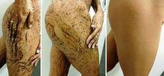 Olá, as estrias são o rompimento das fibras elásticas que sustentam a camada intermediária da pele,formada por colágeno e elastina(responsáv... Beauty Make Up, Beauty Care, Diy Beauty, Beauty Skin, Beauty Hacks, Crawling In My Skin, Beauty Recipe, Tips Belleza, Belleza Natural