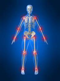 fibromyalgia - Google Search