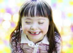 Tudo o que você precisa saber sobre Síndrome de Down! #família                                                                                                                                                                                 Mais