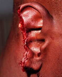 ♡♥Mike Tyson bit off a big part of Evander Holyfield's right ear on June 28th,1997 - click on pic to see a larger pic♥♡