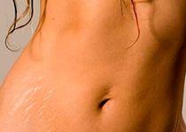 Como prevenir las estrías. Suelen aparecer cuando una persona crece o aumenta de peso muy deprisa...