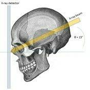 Caldwell's /OF Radiologic Technology, Radiology Imaging, Rad Tech, Anatomy, Teaching, Human Body, School Stuff, Student, Life