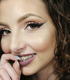 #braces #braceface #metalbraces #girlswithbraces