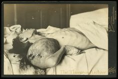Cancerous Tumor Dying man with massive cancerous tumor of the arm. Cabinet card; Maldon, England, c.1899. Photographer: John Rayne.