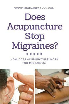 Natural Headache Remedies Does Acupuncture Stop Migraines Migraine Pain, Migraine Relief, Pain Relief, Migraine Doctor, Migraine Hangover, Migraine Piercing, Migraine Diet, Chronic Pain, Acupuncture