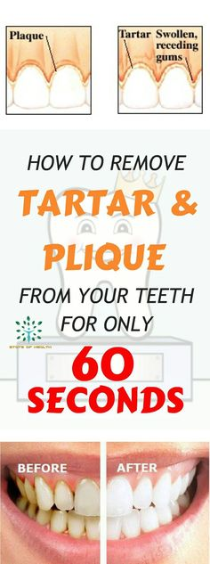 Rinse Your Mouth For 60 Seconds With This Mixture And Remove Tartar And The Plaque From Your Teeth