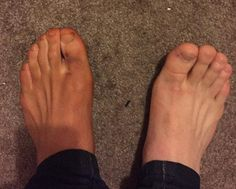 Não é tão ruim ... este pobre pé esquerdo desavisado foi dado um brilho leve  Read more: http://www.dailymail.co.uk/femail/article-4104836/Men-share-hilarious-pictures-feet-stained-deep-brown-reveal-women-lives-use-SOCKS-fake-tanning-mitts.html#ixzz4VUcqHZ1V  Follow us: @MailOnline on Twitter | DailyMail on Facebook    Not so bad...this poor unsuspecting left foot was given a light bronzing...