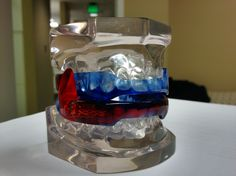 The respire oral appliance.  This is one of many dental sleep apnea appliances we offer.  This device helps advance the jaw to open your airway and reduce obstructions associated with obstructive sleep apnea.  http://www.sleepfredericksburg.com