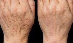 Felejtsd el az öregedési foltokat, reggelre újra csodaszép lesz a bőröd ettől! - Bidista.com - A TippLista!