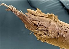 Split End of Human Hair  (image via: Liz Hirst, Wellcome Images)    Seeing how gnarly a split end of human hair looks when magnified many times over may just encourage people to trim their hair more often.