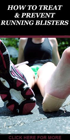 If you are looking for fast ways for treating and preventing running blisters, then CLICK on http://www.runnersblueprint.com/runners-guide-to-treating-and-preventing-blisters/ #RunnngInjury #RunnersBlisters