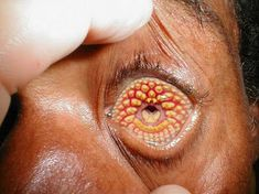 weird-diseases-that-you-hardly-know-15-photos-1