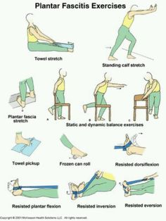 "Worth trying - Plantar fasciitis exercises - I need to get this ""fixed"" so I can run!"