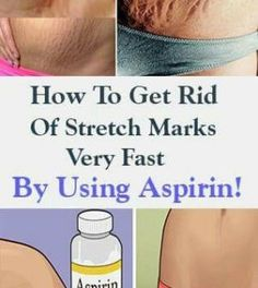 How To Get Rid Of Stretch Marks Very Fast By Using Aspirin!How To Get Rid Of Stretch Marks Very Fast By Using Aspirin! Stretch marks are visible lines which appear on our skin, usually in the abdominal wall, over the thighs, upper arms, buttocks and brea Health Remedies, Home Remedies, Natural Remedies, Natural Health Tips, Health And Beauty Tips, Beauty Care, Beauty Hacks, Stretch Mark Remedies, Stretch Mark Removal