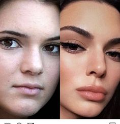 Natural beauty rhinoplasty tip closed rhinoplasty before and after rhinoplasty 1 year after Kylie Jenner Plastic Surgery, Face Plastic Surgery, Celebrity Plastic Surgery, Nose Surgery, Facial Fillers, Lip Fillers, Botox Fillers, Cosmetic Fillers, Relleno Facial