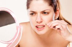 Dark facial hairs can be embarrassing, but you don't have to live with unsightly facial hair. Dermatologists provide permanent hair removal services, or you can try removing or bleaching your facial hair at home. Ingrown Hair Remedies, Moustache, Upper Lip Hair, Baking Soda Benefits, Remover Manchas, Skin Images, Unwanted Hair, Unwanted Facial, Hair Removal
