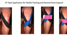 Kt Tape Knee, Knee Taping, Patella Fracture, Knee Meniscus, K Tape, Runners Knee, Knee Arthritis, Kinesiology Taping, Knee Exercises