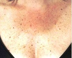 Dark spots on neck may appear as tiny marks that may be itchy at times. In this article, find out th Dark Spots On Neck, Spots On Face, Skin Spots, Black Dots On Skin, Back Acne Remedies, Alcohol Free Toner, Skin Firming, Skin Cream, Organic Skin Care