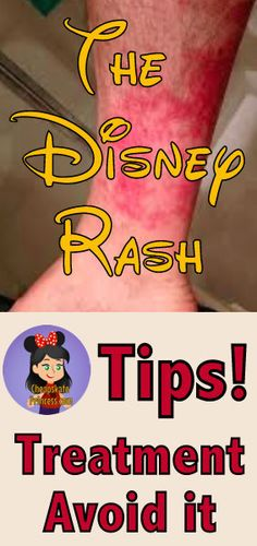 How to Beat the Disney Rash! Just in case! Disney World Parks, Disney World Planning, Walt Disney World Vacations, Disney Travel, Disney World Tips And Tricks, Disney Tips, Disney Magic, Disney Word, Disney Fun