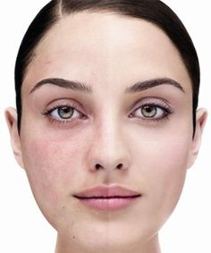 Acne Rosacea - What is acne rosacea ? Learn about the factors that cause acne rosacea, symptoms and treatment. Rosacea Symptoms, Rosacea Remedies, Acne Rosacea, Ocular Rosacea, Natural Remedies, Hormonal Acne, Pimples, Household Tips, Home Remedies