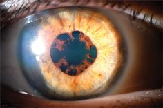 A synechia is an eye condition where the iris adheres to either the cornea (i.e. anterior synechia) or lens (i.e. posterior synechia).