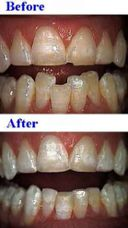 Boynton Beach Dentist - Laser Dentist
