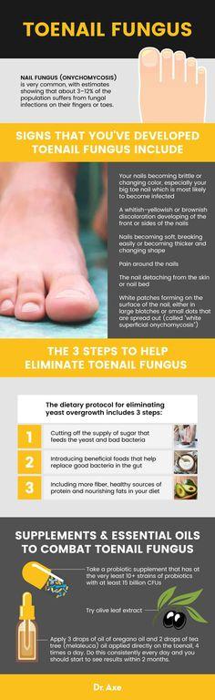 Toenail Fungus: Natural Treatment, Symptoms and Causes - Dr. Natural Treatments, Natural Remedies, Natural Antifungal, Tongue Health, Fungal Nail Infection, Toenail Fungus Treatment, How To Get Rid, Toe Nails, Glam Nails