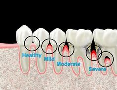 Stages of periodontal disease. pic to show my patients and explain why we probe