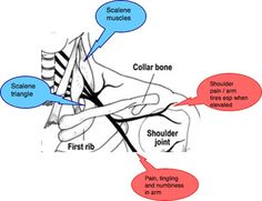 THORACIC OUTLET SYNDROME causes pain and tingling in the arm