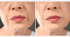 Some Effective Home Remedies For Wrinkles Free Skin - Laser Skin Tightening, Skin Firming, Face Tightening, Cosmetic Surgery Prices, Home Remedies For Wrinkles, Reverse Aging, Eye Wrinkle, Skin Care Cream, Sagging Skin