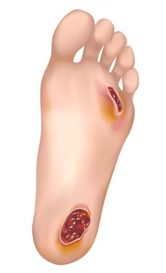 Les ulcères du pied diabétique sont la complication la plus commune du diabète. Ils se développent chez 15 % des patients diabétiques et plus fréquemment chez les gens âgés. 85% de toutes des amputations des pieds reliées au diabète ont débuté par un ulcère. La plaie débute par une petite lésion de la peau telle qu'une ampoule, une écorchure ou petite écharde. La blessure se détériore par la suite car les diabétiques ont plusieurs facteurs de complications.