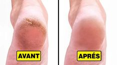 10 Home Remedies to Remove Cracked Heels and Get Beautiful Feet - Care - Skin care , beauty ideas and skin care tips Vaseline Beauty Tips, Face Care Tips, Skin Care Tips, Aloe Vera, Cracked Feet, Home Remedies For Acne, Vicks Vaporub, Hand Care, Peeling