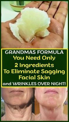 Grandmas Formula You Need Only 2 Ingredients To Eliminate Sagging Facial Skin And Wrinkles Over Night! – Healthy Helps Grandmas Formulag You Need Only 2 Ingredients To Eliminate Sagging Facial Skin And Wrinkles Over Night!