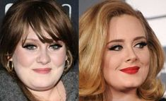 Adele Plastic Surgery before and after photos nose job 2