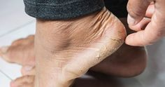 pa Beauty Tips For Skin, Health And Beauty Tips, Skin Care Tips, Beauty Hacks, Vicks Vapor Rub, Dry Cracked Feet, Oil Free Foundation, Manicure E Pedicure, Prevent Wrinkles