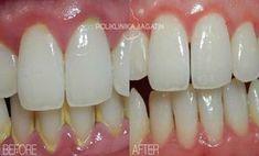 Hnedé alebo žlté škvrny na zuboch možno odstrániť doma! Zubný kameň je častým problémom, a moderne stomatológie navrhujú mnoho spôsobov, ako na jeho odstránenie. Ale je metóda, ktorá dokonale rieši tento problém a ušetri peniaze. Našťastie je prírodný prostriedok na prevenciu tohto nepríjemného problému! zloženie: 40 gr škrupín vlašských orechov