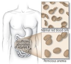 Decent article on Pernicious Anemia