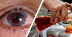 Over time, many of our body functions begin to deteriorate, with our eyesight breaking down first. The eyesight is responsible for about of the information we receive, as well as for avoiding obstacles and learning Herbal Remedies, Home Remedies, Natural Remedies, Health Remedies, Saffron Tea, Sante Bio, Eye Sight Improvement, Vision Eye, Chest Congestion