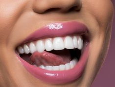 An ultra glossy non-sticky formula with a unique smooth feel. Can be worn alone or over any lipstick. Mid-Tone Pink Rose LIMIT 2 per customer Excluded from all Veneers Teeth, Dental Veneers, Beautiful Teeth, Perfect Teeth, Budget Planer, Whitening Kit, Dose Of Colors, Healthy Teeth, Glossy Lips