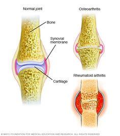 Illustration showing difference between osteoarthritis and rheumatoid arthritis