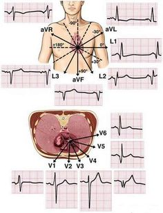 physician assistant specialty: EKG