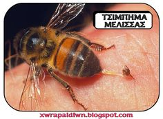 How to treat a bee sting? Get rid of a bee sting fast & naturally. Cure a bee sting overnight. Ways to prevent a bee sting. Remedies to treat a bee sting. Bee Sting First Aid, Bee Sting Allergy, Honey Bee Sting, Remedies For Bee Stings, Getting Rid Of Bees, Tumor Cerebral, Drone Bee, Medical Symptoms, Jellyfish Sting