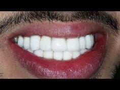 İSTER İNANIN İSTER İNANMAYIN ; 10 Dakikada Bembeyaz Dişlere Sahip Olun ( Süper Yöntem ) - YouTube