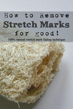 How to lighten and fade stretch marks - permanently!