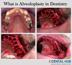 Alveoloplasty refers to the shaping of alveolar process using surgical methods. It is done if a person has bony projections, sharp crestal bones or undercuts.