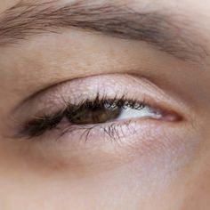 Eye Exercises to Decrease Ptosis