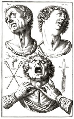 Giulio Casserio (c.1552-1616). Oldest description of tracheotomy.