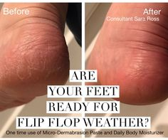 Consultant Sara Ross used the Micro-Dermabrasion Paste and Daily Body Moisturizer from Rodan+Fields to get rid of her dry skin on her heels.